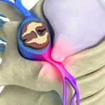 Pinched Nerves | Premier Chiropractic & Dr. Richard Bodnarchuk, Little Falls, NJ